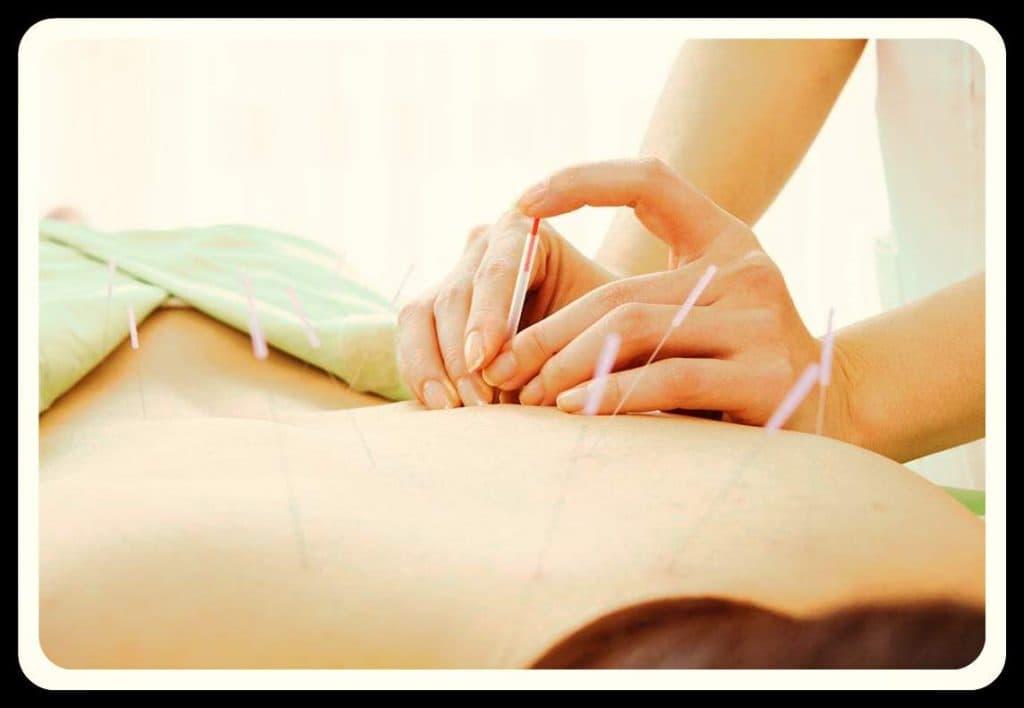 acupuntura china que es
