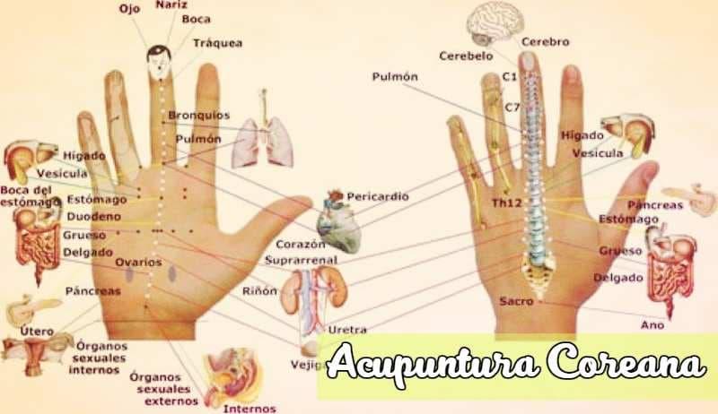 acupuntura coreana